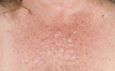 Zonbeschadigde huid